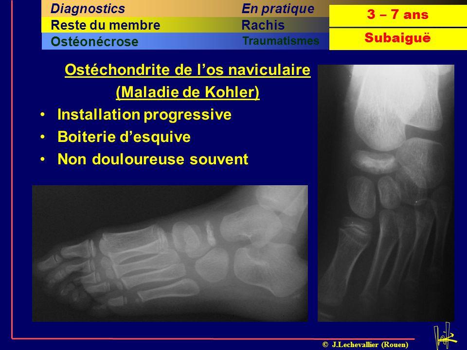 Ostéchondrite de l'os naviculaire