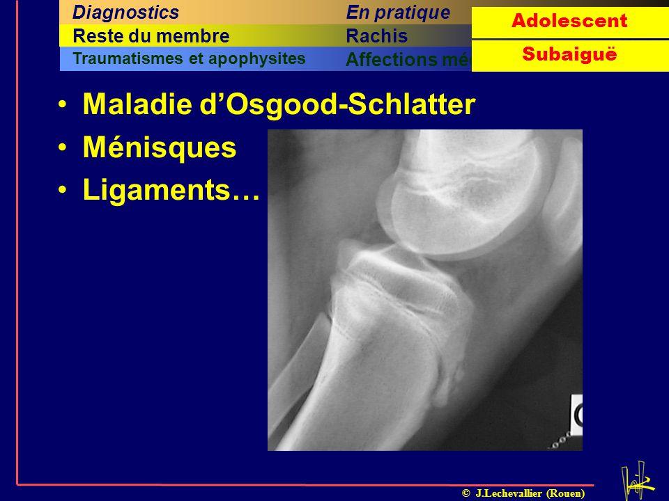 Maladie d'Osgood-Schlatter Ménisques Ligaments…