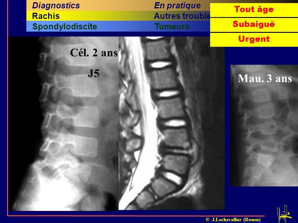 Cél. 2 ans J5 Mau. 3 ans En pratique Diagnostics Problématique