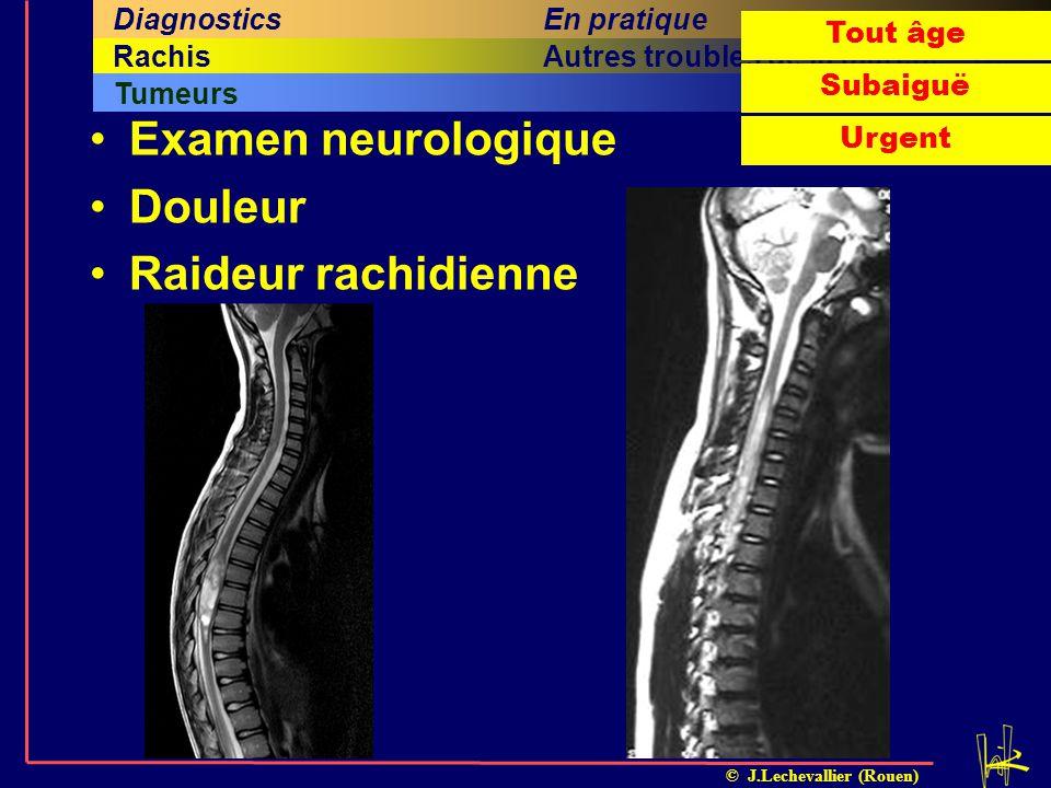 Examen neurologique Douleur Raideur rachidienne En pratique