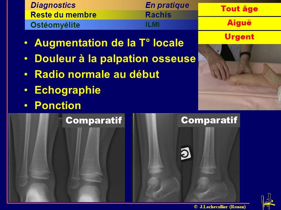 Augmentation de la T° locale Douleur à la palpation osseuse