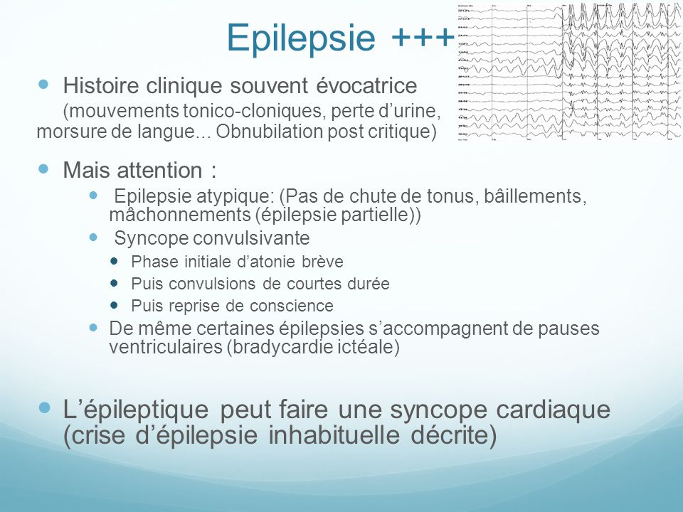Epilepsie +++ Histoire clinique souvent évocatrice. (mouvements tonico-cloniques, perte d'urine, morsure de langue... Obnubilation post critique)