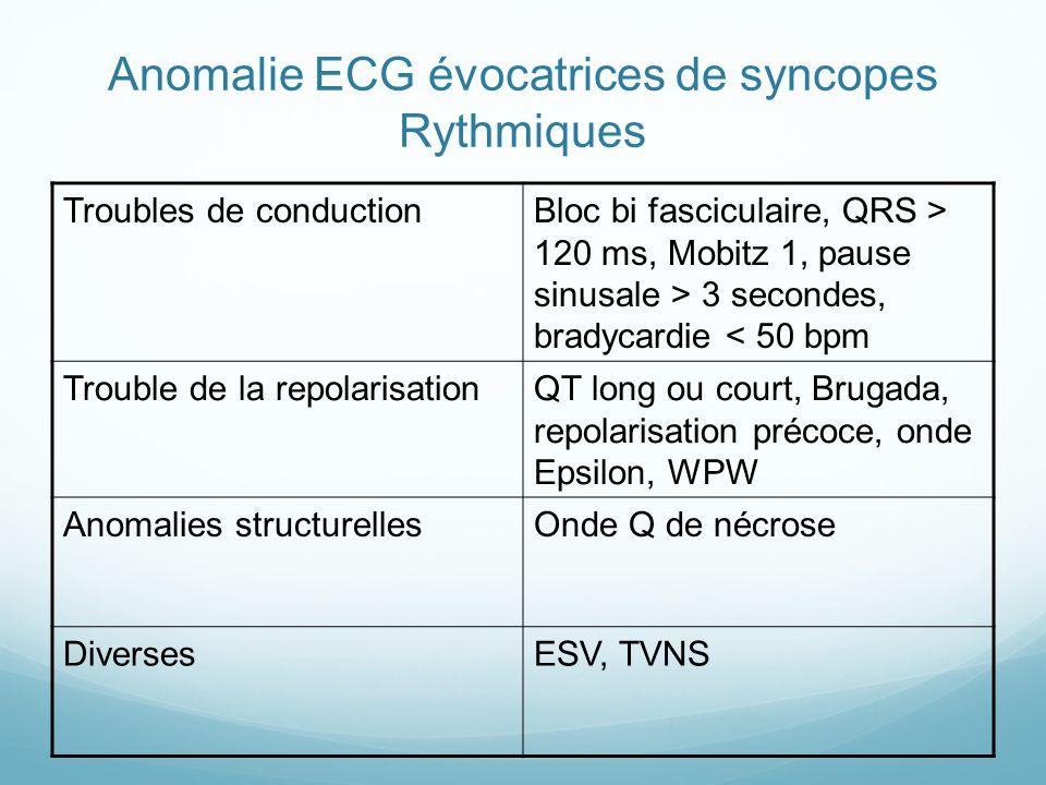 Anomalie ECG évocatrices de syncopes Rythmiques