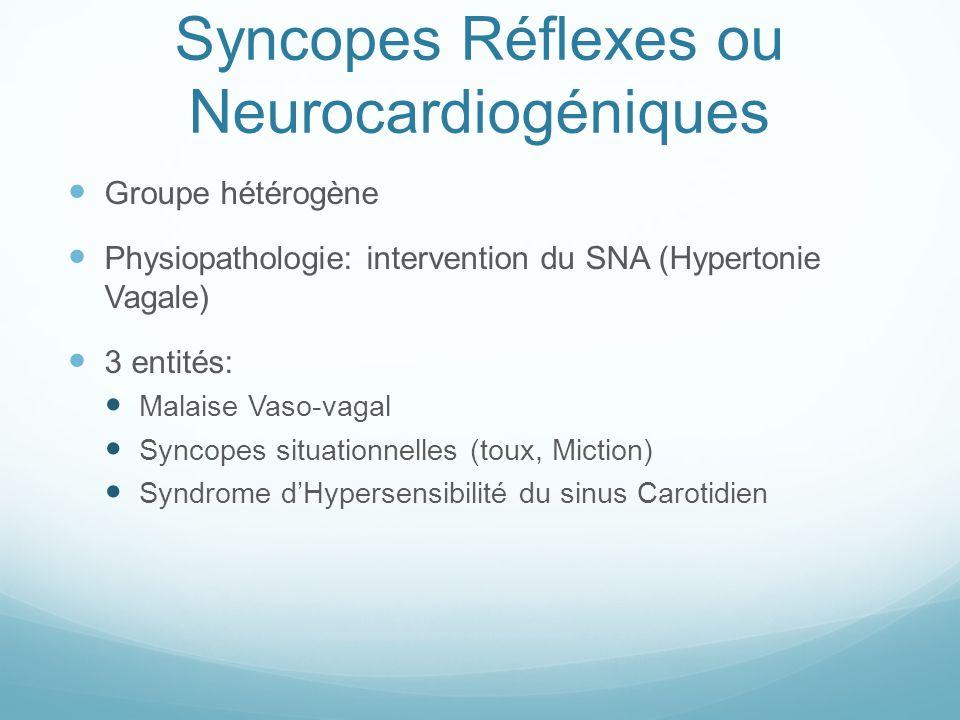 Syncopes Réflexes ou Neurocardiogéniques