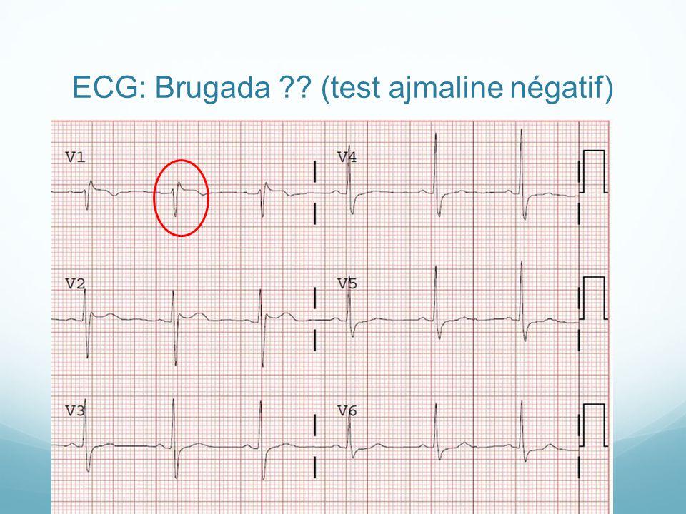 ECG: Brugada (test ajmaline négatif)