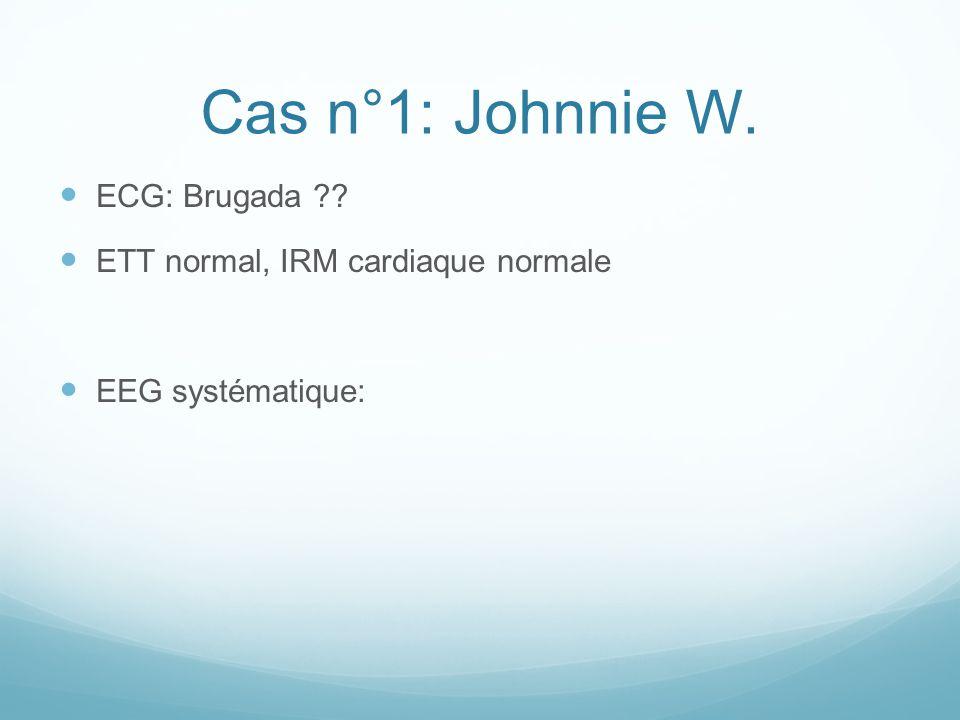 Cas n°1: Johnnie W. ECG: Brugada ETT normal, IRM cardiaque normale