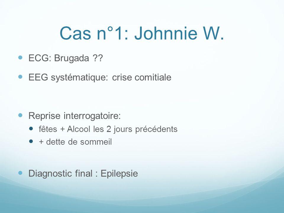 Cas n°1: Johnnie W. ECG: Brugada EEG systématique: crise comitiale