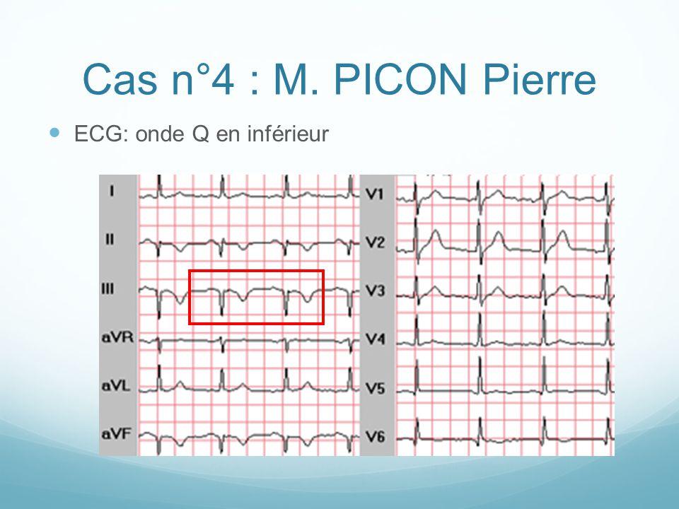 Cas n°4 : M. PICON Pierre ECG: onde Q en inférieur