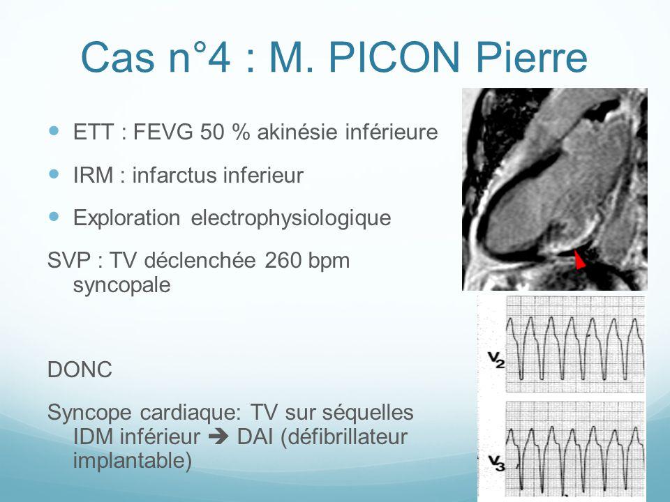 Cas n°4 : M. PICON Pierre ETT : FEVG 50 % akinésie inférieure