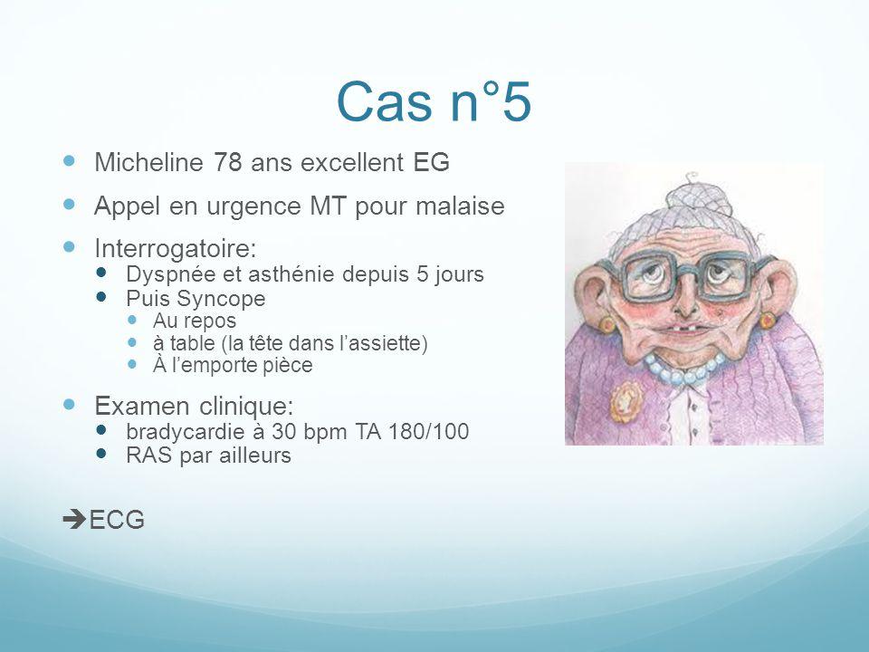 Cas n°5 Micheline 78 ans excellent EG Appel en urgence MT pour malaise