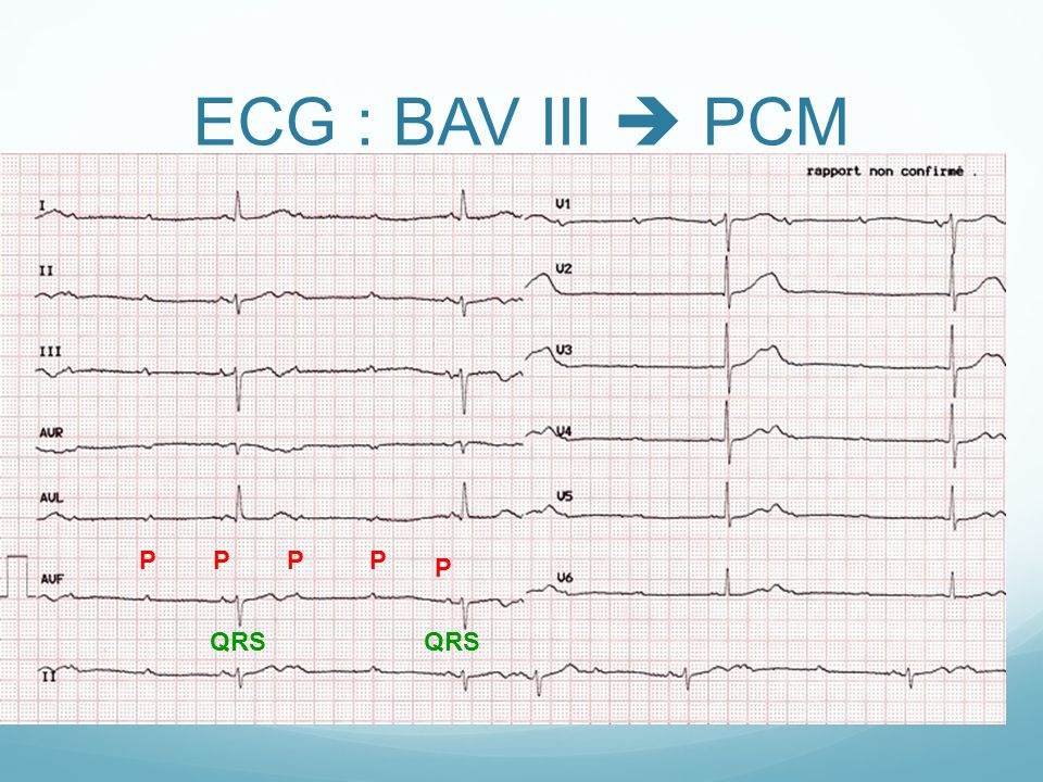 ECG : BAV III  PCM P P P P P QRS QRS