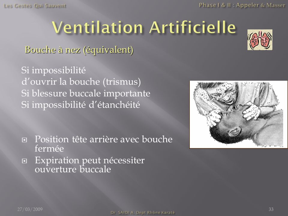 Ventilation Artificielle