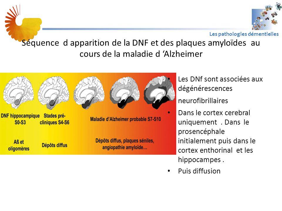Séquence d apparition de la DNF et des plaques amyloïdes au cours de la maladie d 'Alzheimer