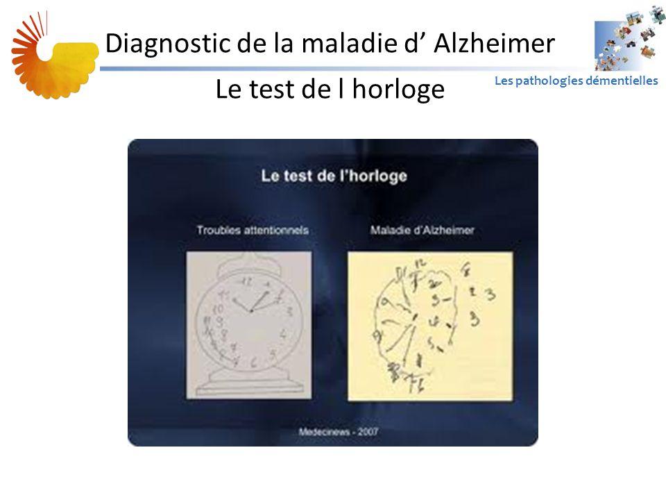 Diagnostic de la maladie d' Alzheimer Le test de l horloge