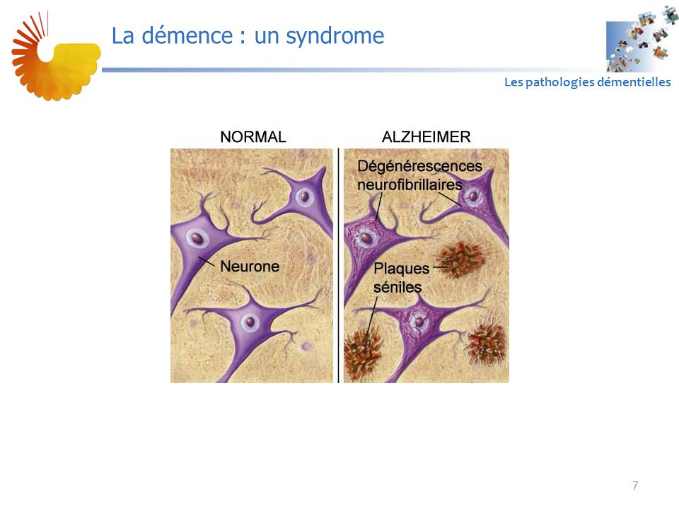 La démence : un syndrome