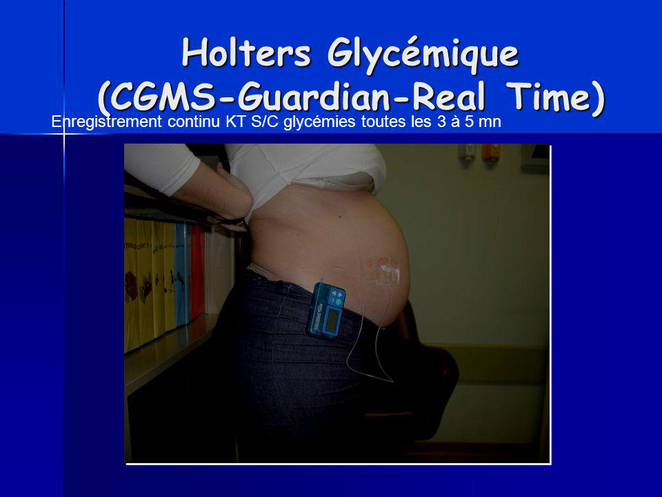 Holters Glycémique (CGMS-Guardian-Real Time)