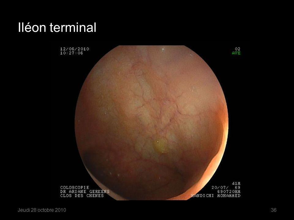 Iléon terminal Formes ulcérées, suintantes
