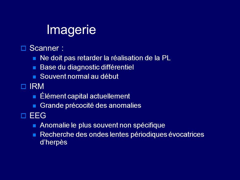 Imagerie Scanner : IRM EEG