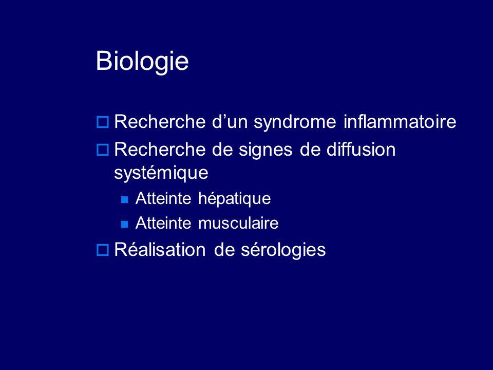 Biologie Recherche d'un syndrome inflammatoire