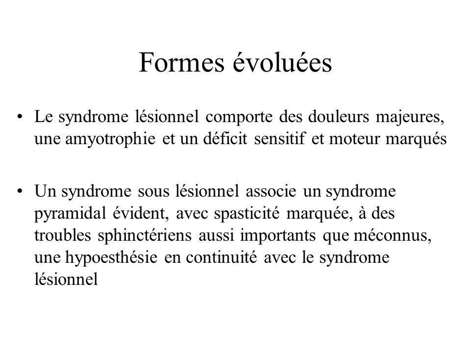 Formes évoluées Le syndrome lésionnel comporte des douleurs majeures, une amyotrophie et un déficit sensitif et moteur marqués.