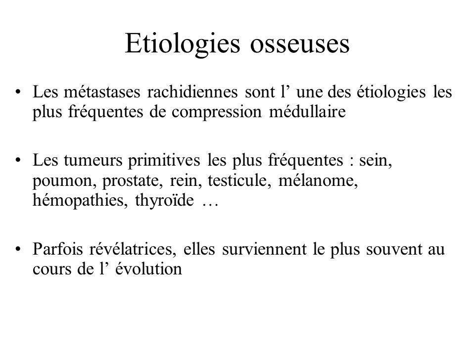 Etiologies osseuses Les métastases rachidiennes sont l' une des étiologies les plus fréquentes de compression médullaire.