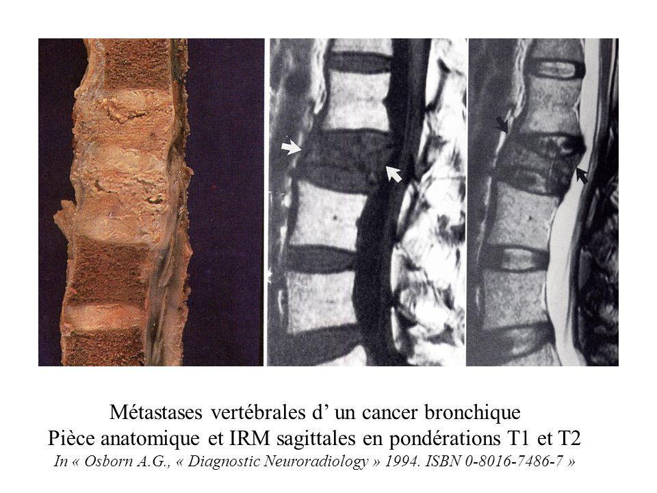Métastases vertébrales d' un cancer bronchique