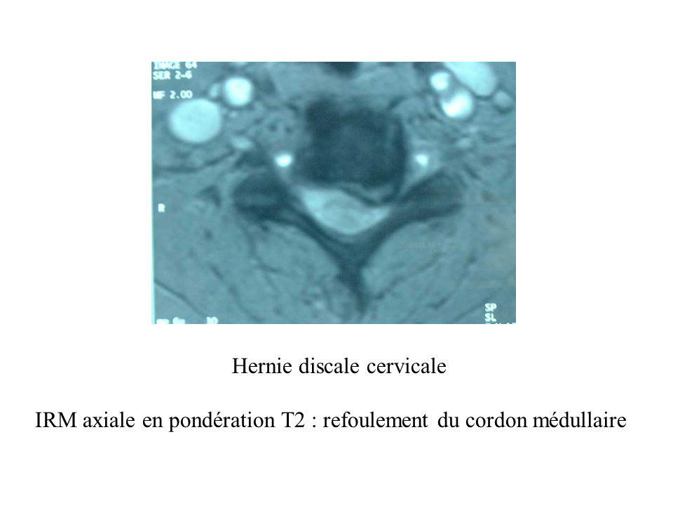 Hernie discale cervicale