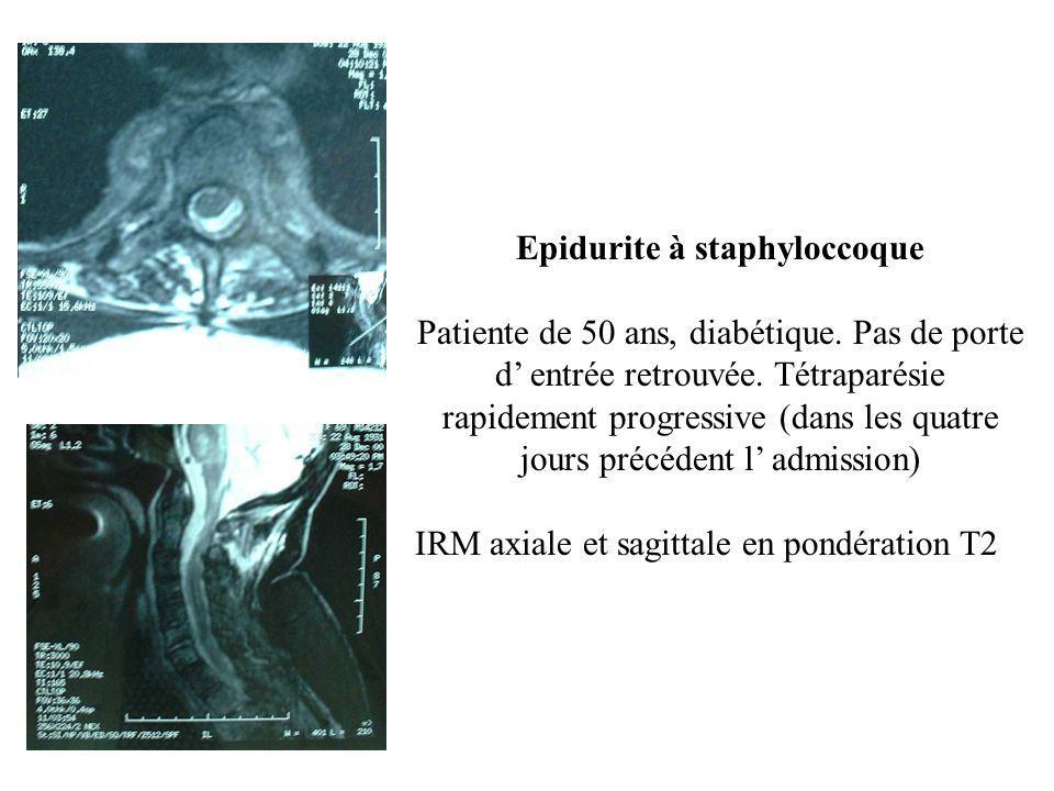 Epidurite à staphyloccoque