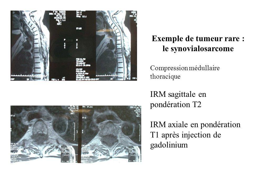 Exemple de tumeur rare : le synovialosarcome