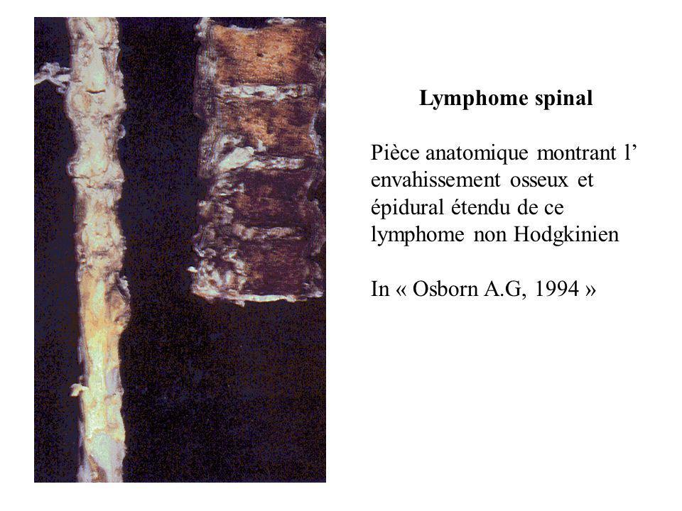 Lymphome spinal Pièce anatomique montrant l' envahissement osseux et épidural étendu de ce lymphome non Hodgkinien.