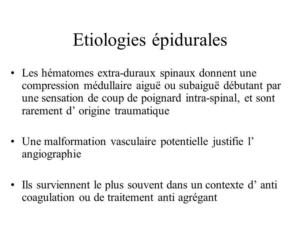 Etiologies épidurales