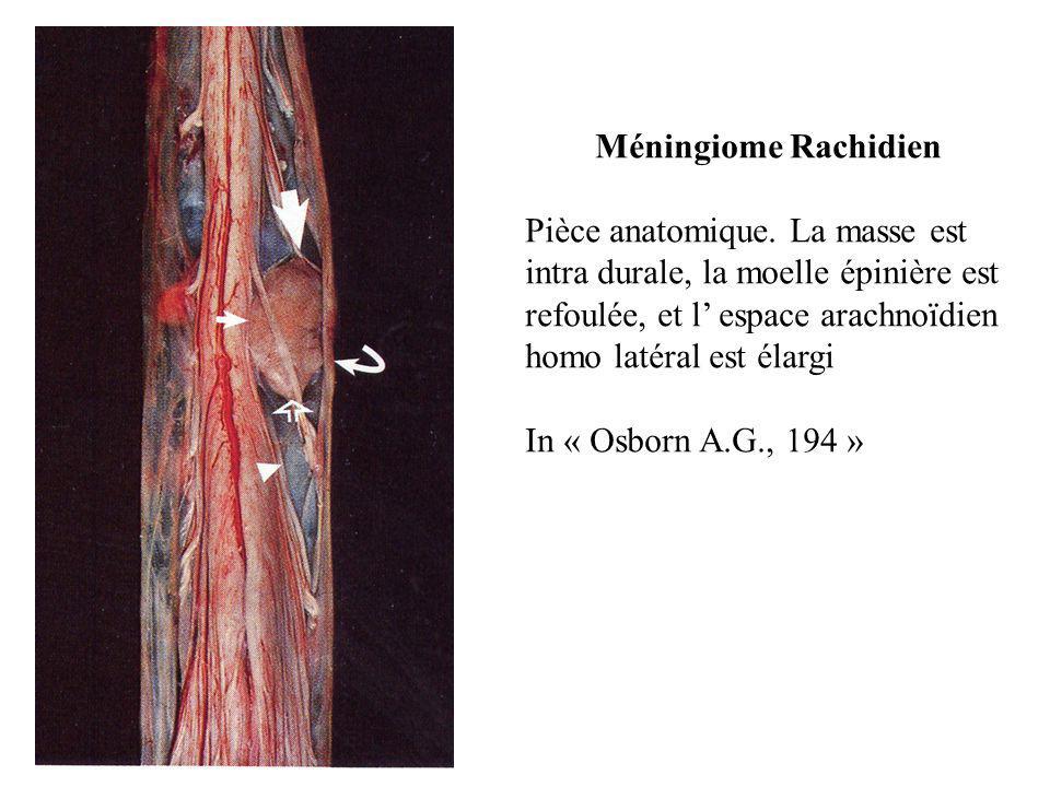 Méningiome Rachidien Pièce anatomique. La masse est intra durale, la moelle épinière est refoulée, et l' espace arachnoïdien homo latéral est élargi.