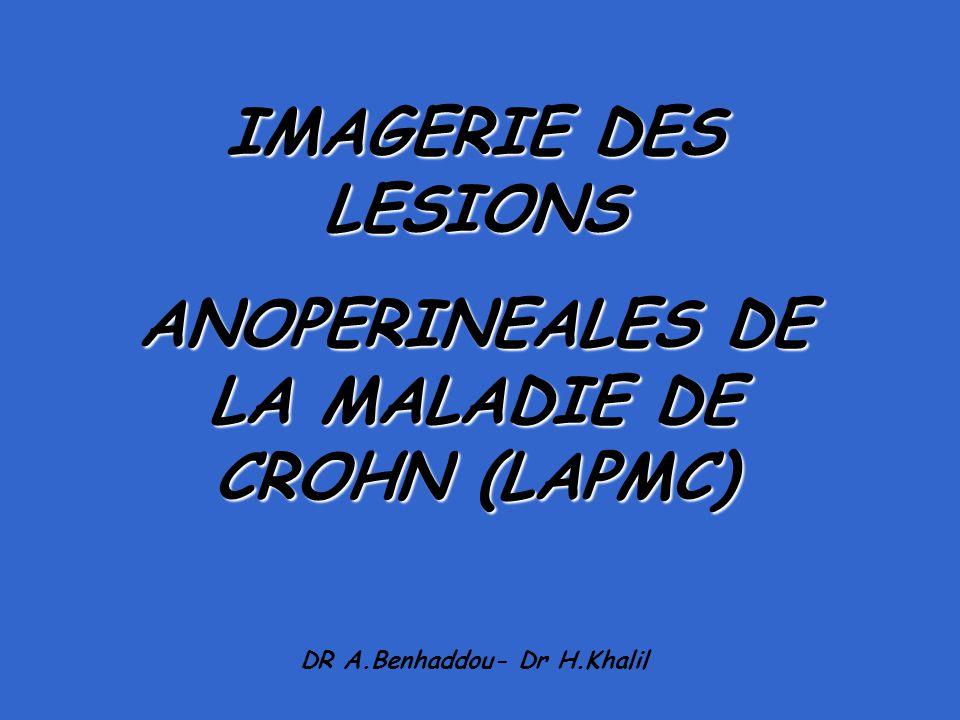 IMAGERIE DES LESIONS ANOPERINEALES DE LA MALADIE DE CROHN (LAPMC)