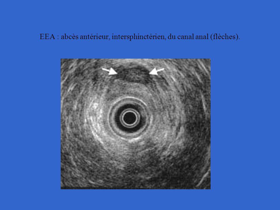 EEA : abcès antérieur, intersphinctérien, du canal anal (flèches).