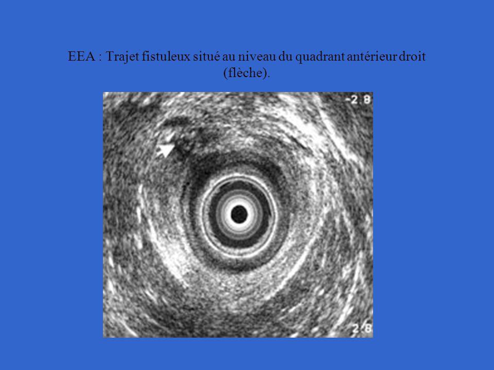 EEA : Trajet fistuleux situé au niveau du quadrant antérieur droit (flèche).