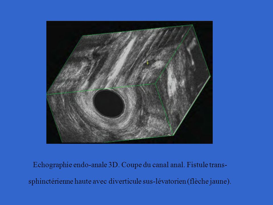 Echographie endo-anale 3D. Coupe du canal anal
