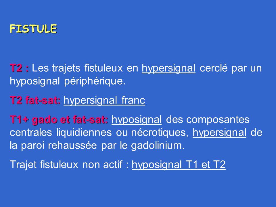 FISTULE T2 : Les trajets fistuleux en hypersignal cerclé par un hyposignal périphérique. T2 fat-sat: hypersignal franc.
