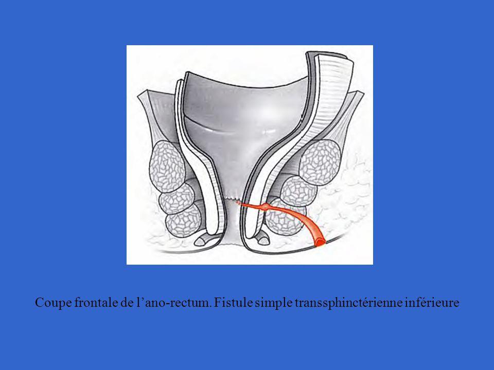 Coupe frontale de l'ano-rectum