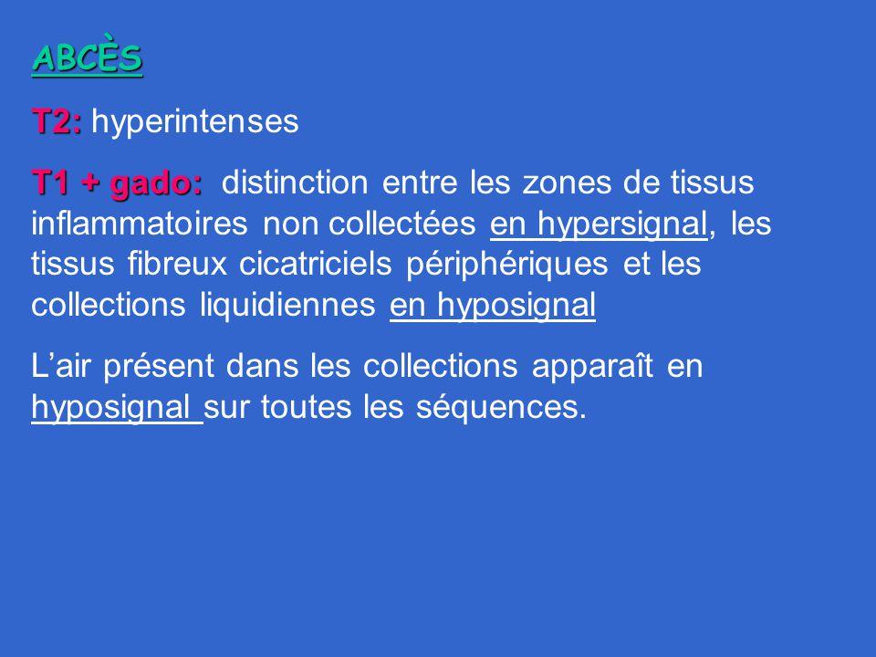 ABCÈS T2: hyperintenses.