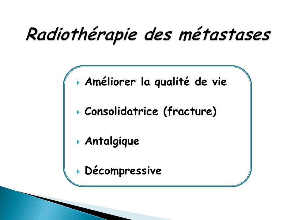 Radiothérapie des métastases