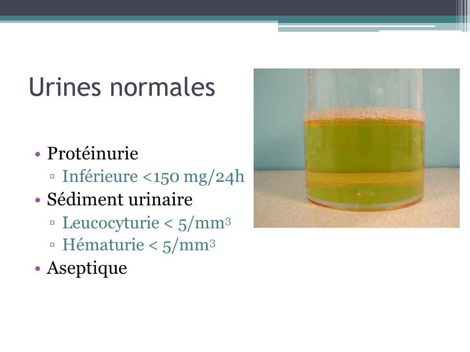 Urines normales Protéinurie Sédiment urinaire Aseptique