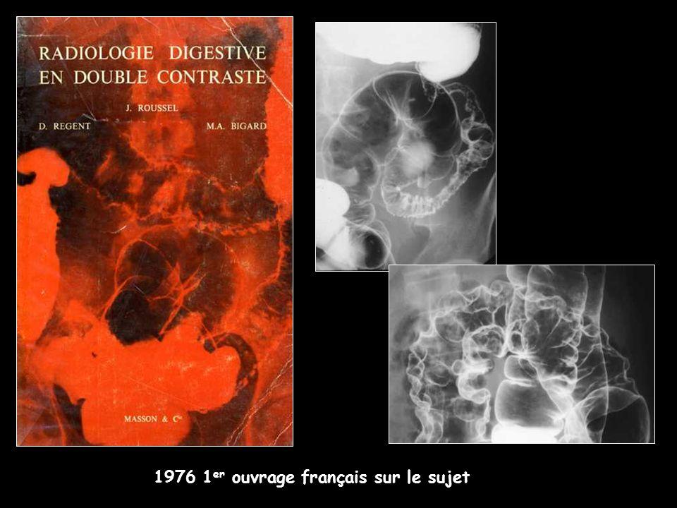 1976 1er ouvrage français sur le sujet
