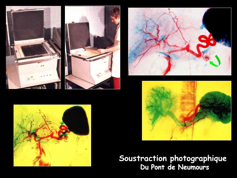 Soustraction photographique