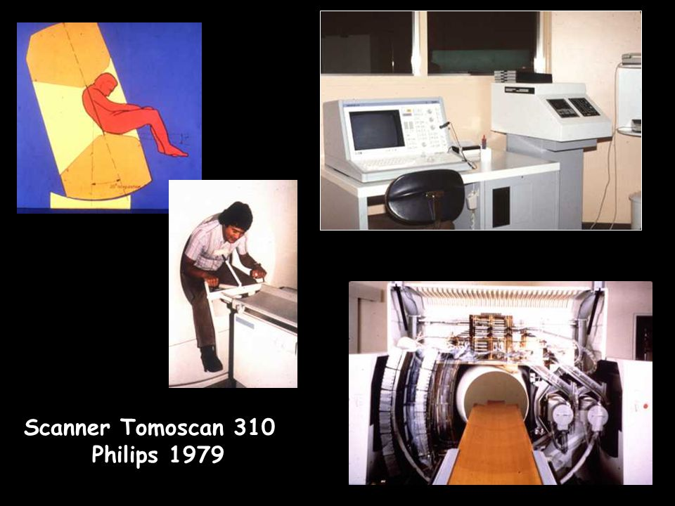 Scanner Tomoscan 310 Philips 1979