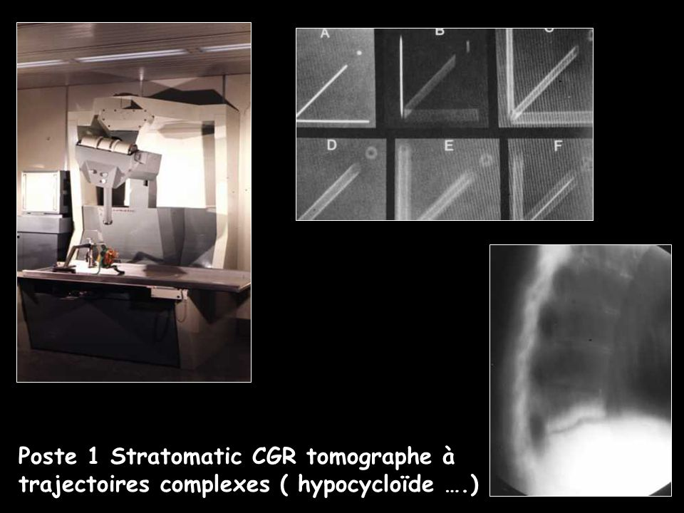 Poste 1 Stratomatic CGR tomographe à trajectoires complexes ( hypocycloïde ….)