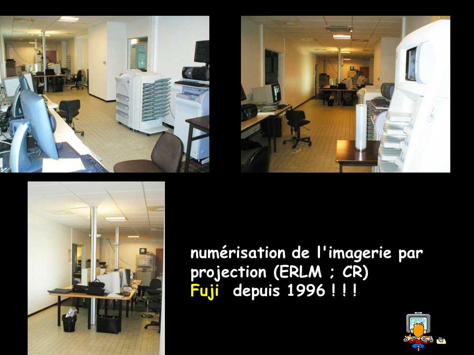 numérisation de l imagerie par projection (ERLM ; CR)