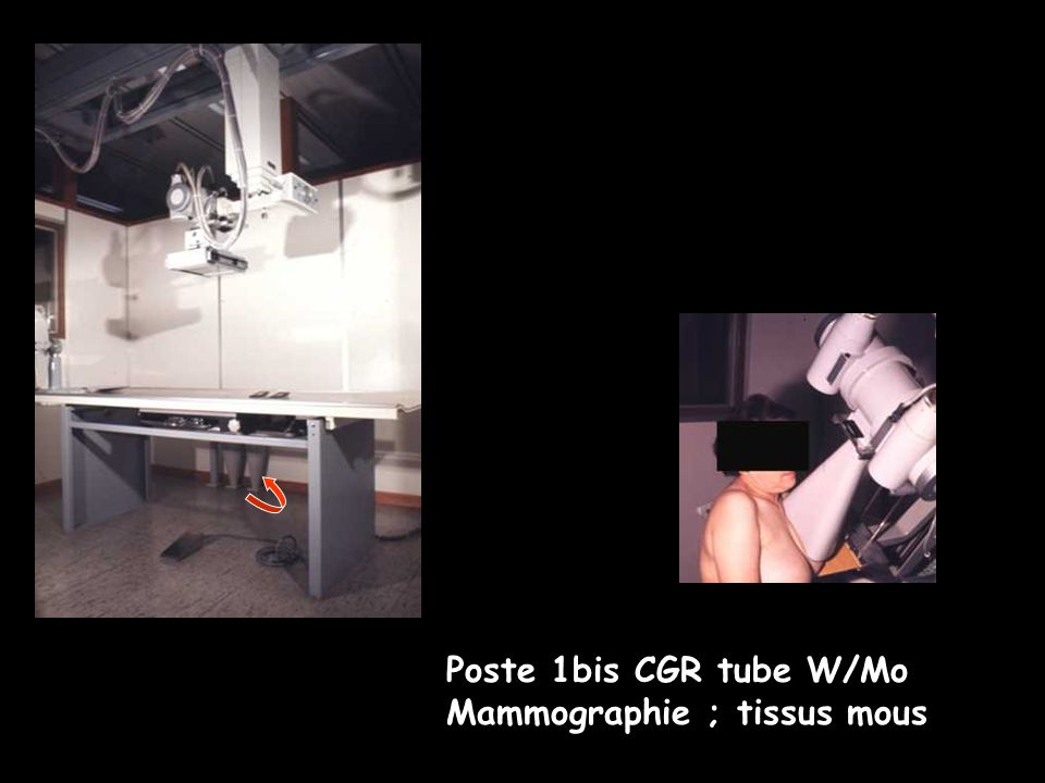 Poste 1bis CGR tube W/Mo Mammographie ; tissus mous