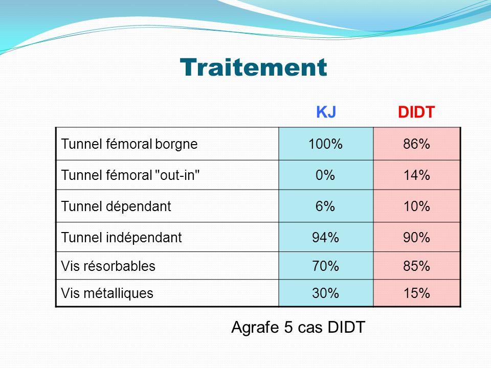 Traitement KJ DIDT Agrafe 5 cas DIDT Tunnel fémoral borgne 100% 86%
