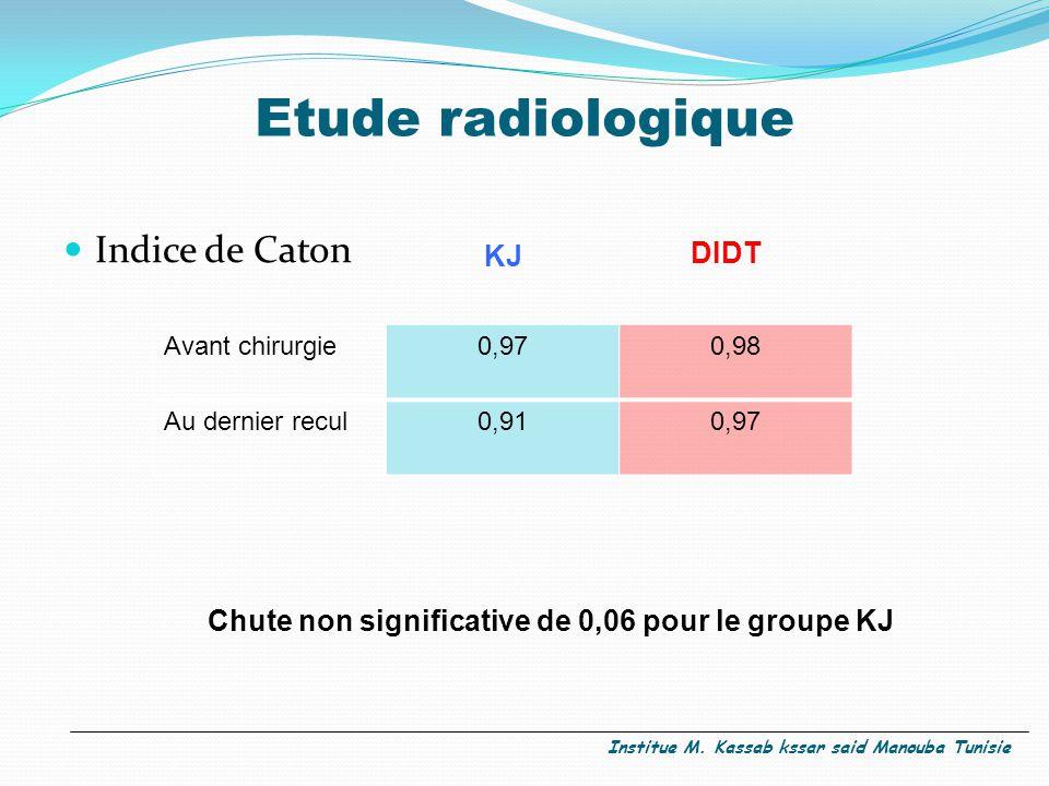 Etude radiologique Indice de Caton DIDT KJ