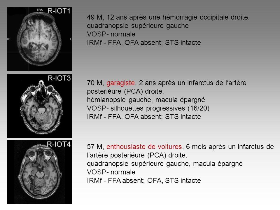 49 M, 12 ans après une hémorragie occipitale droite.